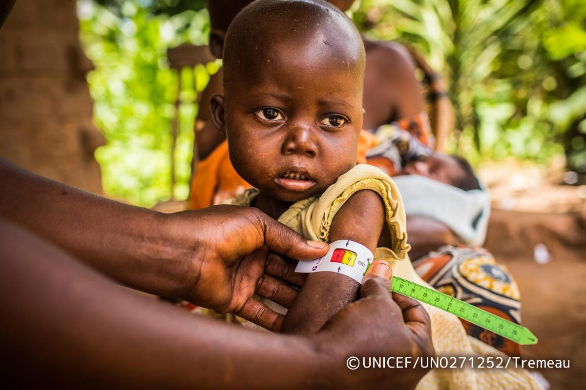 アフリカ栄養危機緊急募金について【ハッピーミルクプロジェクト】